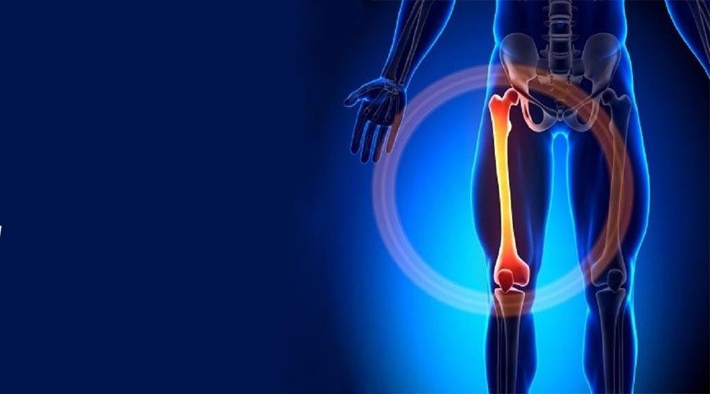 """گزارش موردی درمان جوش نخوردن مزمن""""نان یونیون"""" شکستگی استخوان ران با طب سنتی"""