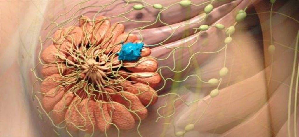 درمان کیست سینه - سلامتکده ی طب سنتی بوعلی